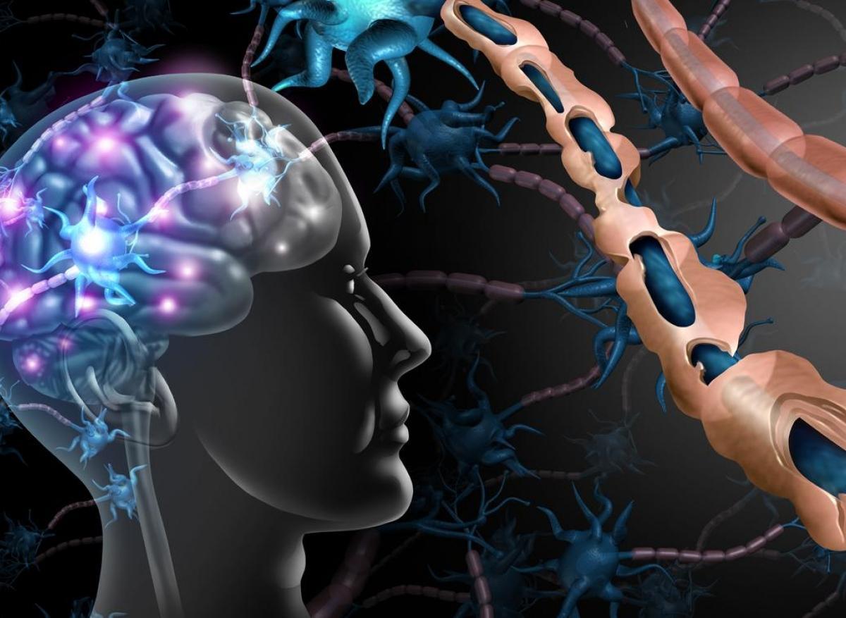 floodlight sclerose en plaques
